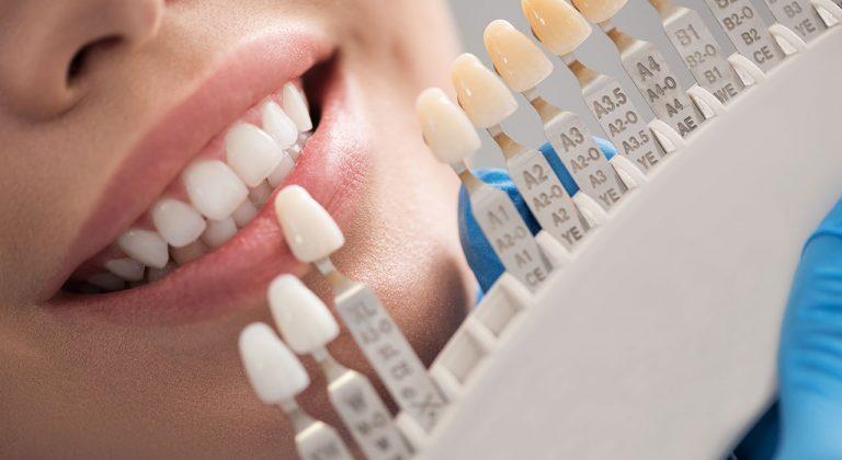 restoractive_dentalcrowns_brookview