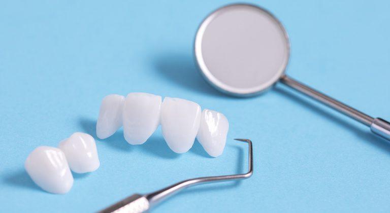 restorative_dentalbridges_brookview