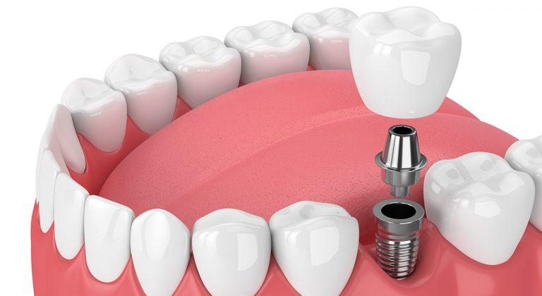 restorative_dentalimplants_brookview